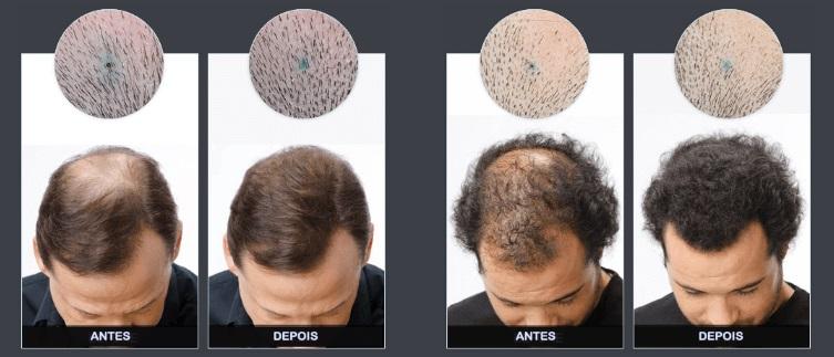 capifix antes e depois