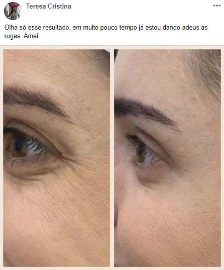 dermacaps antes e depois